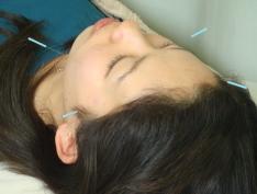 顔面神経麻痺の治療法