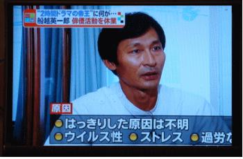 顔面神経麻痺についてテレビで解説